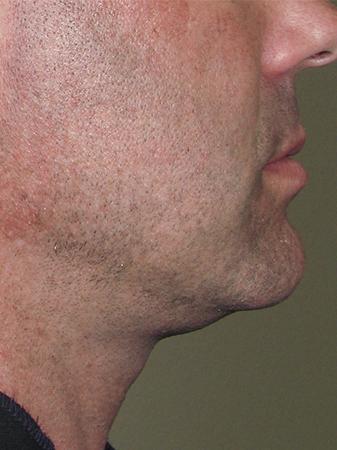 opstramning af hud